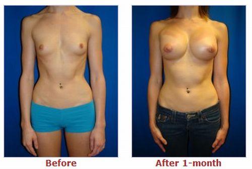 клиники пластической хирургии увеличение груди