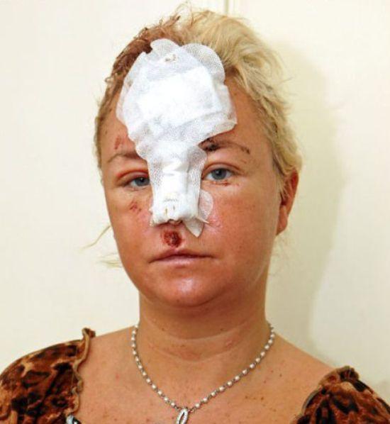 Как пластические хирурги сделали монстра из стриптизерши (23 фото)