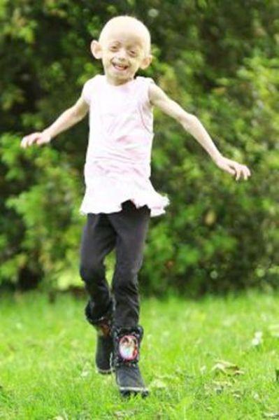 Девочка, которая стареет в 8 раз быстрее (19 фото)