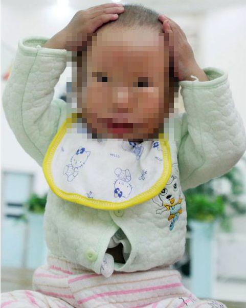 Китайский мальчик с врожденной маской на лице (5 фото)