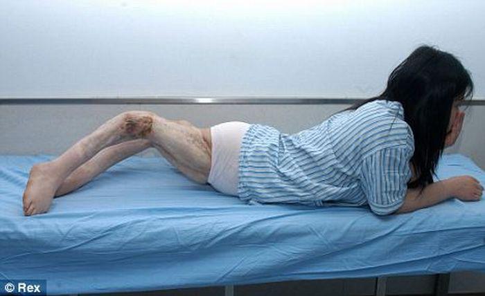 Китайская девушка с перекрученными ногами (4 фото)