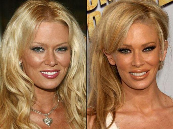 Звезды до и после пластических