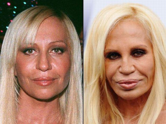 Звезды до и после пластических операций (21 фото)