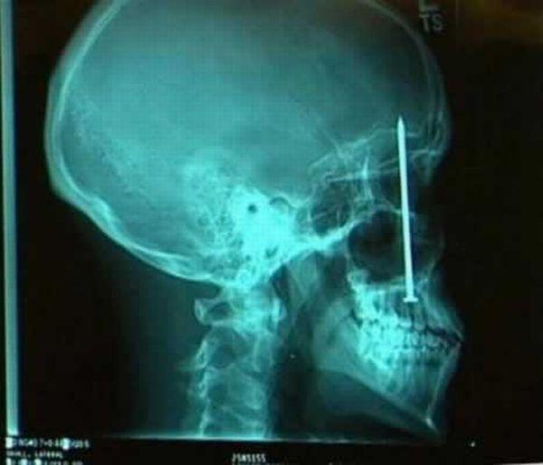 Самые странные снимки рентгена (20 фото)