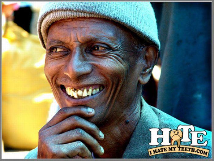 Худшие зубы в мире (31 фото)