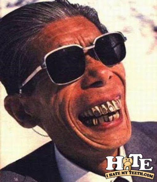 Los dientes más feos del mundo