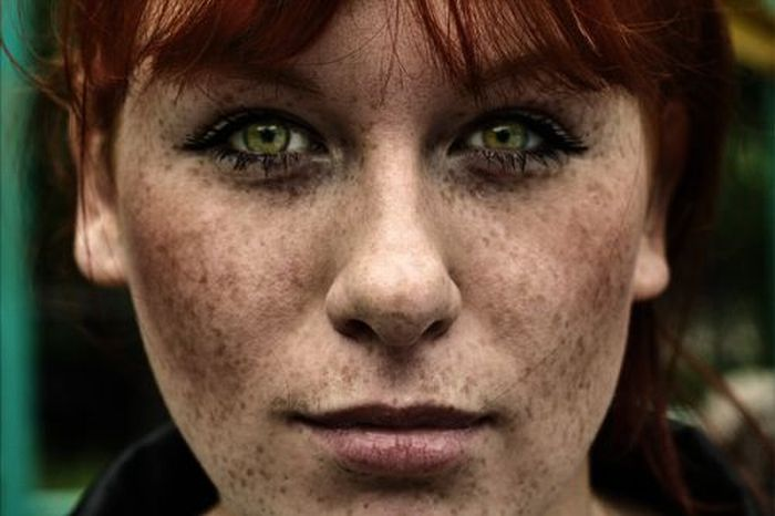 freckles wam