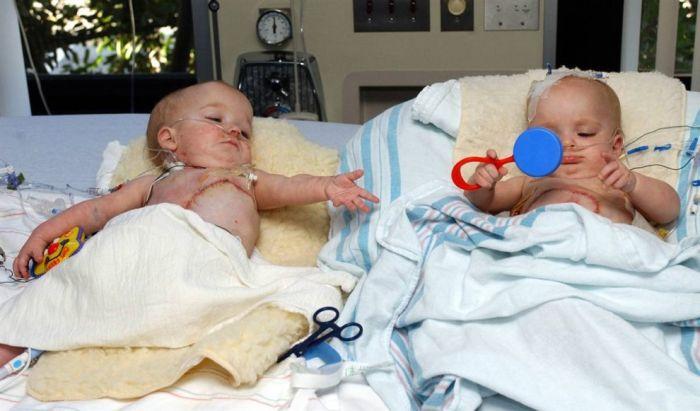 Новая жизнь сиамских близнецов (13 фото)