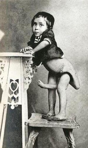 Цирковые уроды прошлого (25 фото)