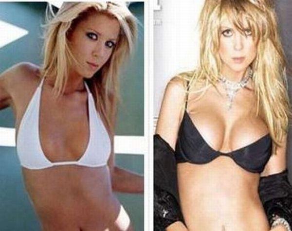 Звезды до и после операций по увеличению груди (10 фото)