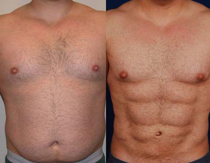 Мужчины с имплантами фото