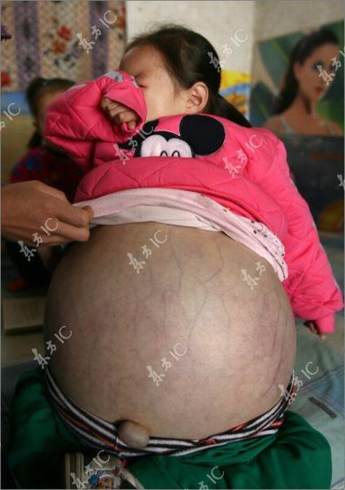 4-летняя девочка с огромным животом (19 фото)