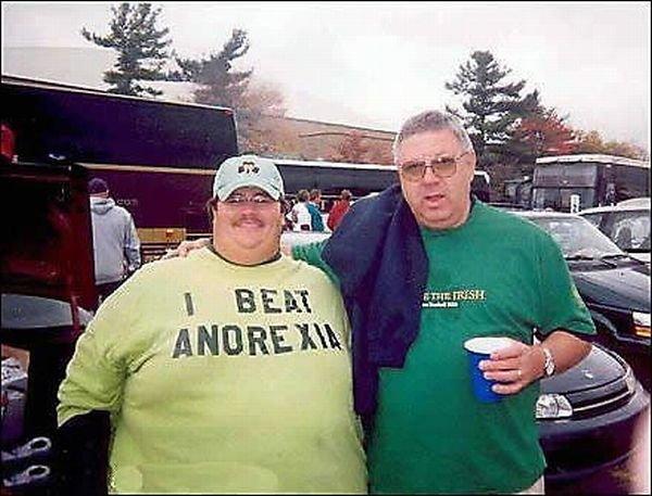 Люди с двойным подбородком (16 фото)