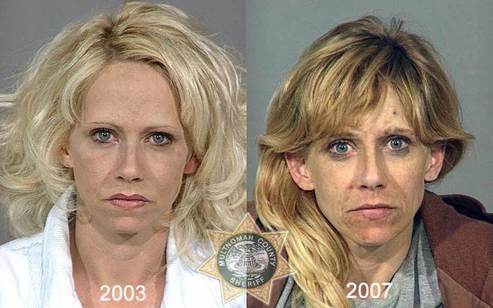 До и после метамфетамина (22 фото)