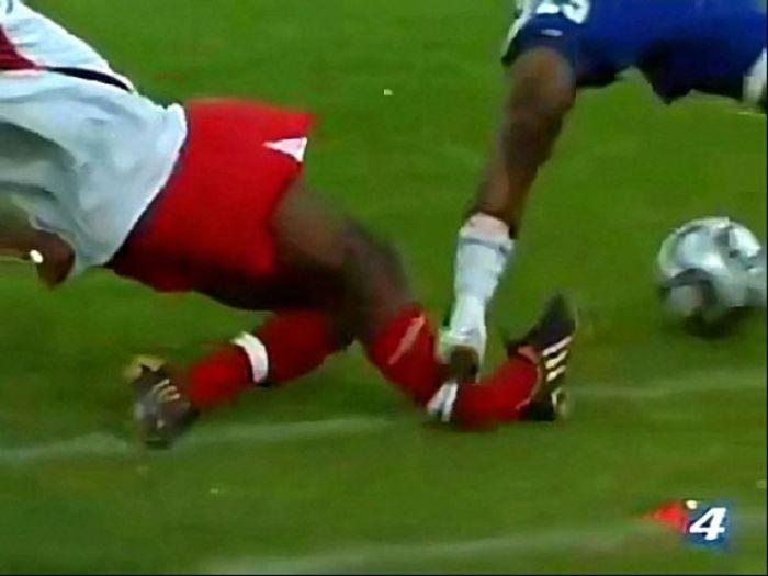 Страшные спортивные травмы (20 фото)