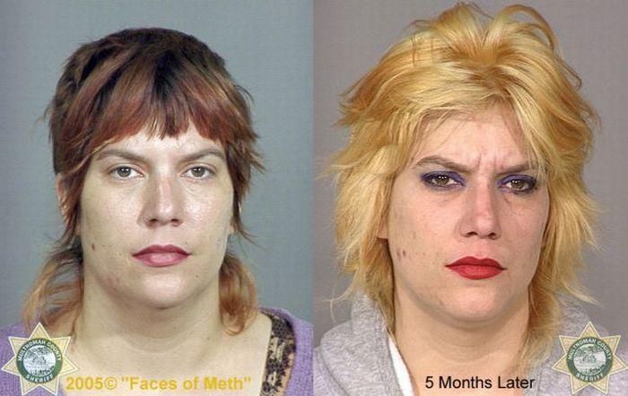 До и после метамфетамина. Часть 2 (38 фото)