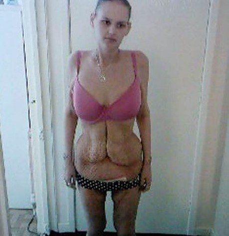 Из толстушки в анорексичку (5 фото)