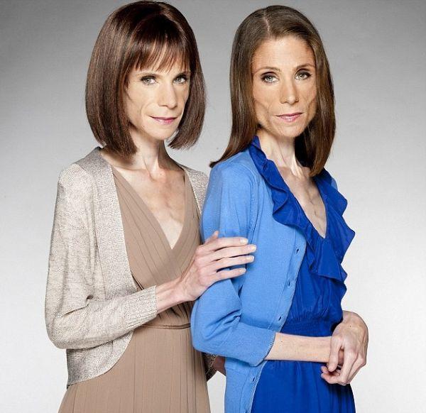 Сестры-близнецы анорексички (4 фото)