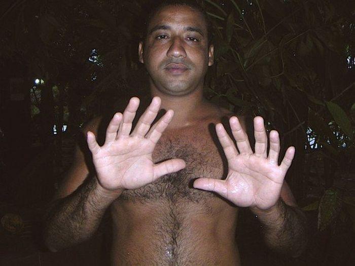 24 пальца (2 фото)