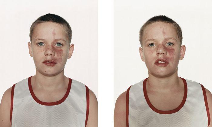 Боксеры до и после боя (44 фото)
