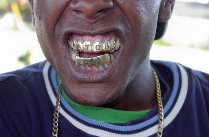 Гангстерские украшения для зубов (13 фото)