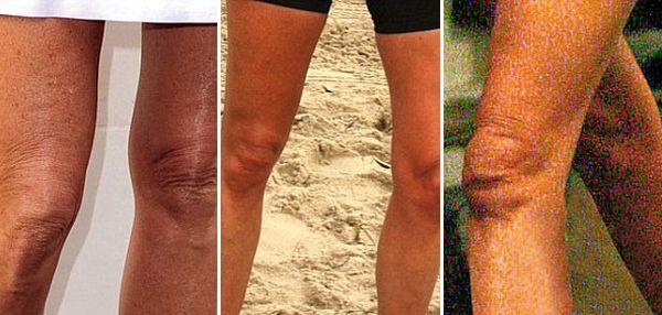 Угадайте чьи коленки? (10 фото)