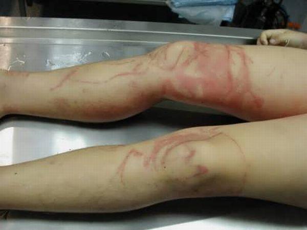 Ожоги, полученные от морской осы (12 фото)