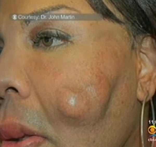 Жертва фальшивого врача (4 фото)