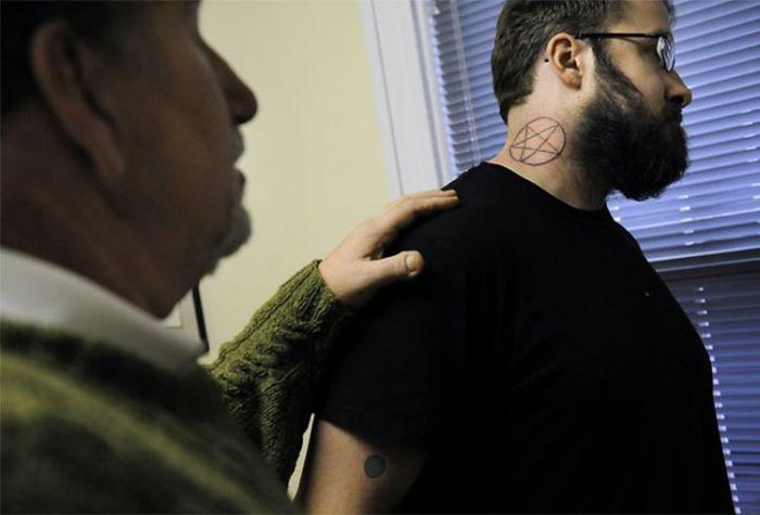 Удаление татуировок (9 фото)