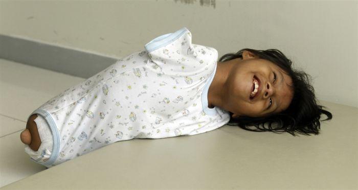 Неунывающая девочка - инвалид из Перу (9 фото + видео)