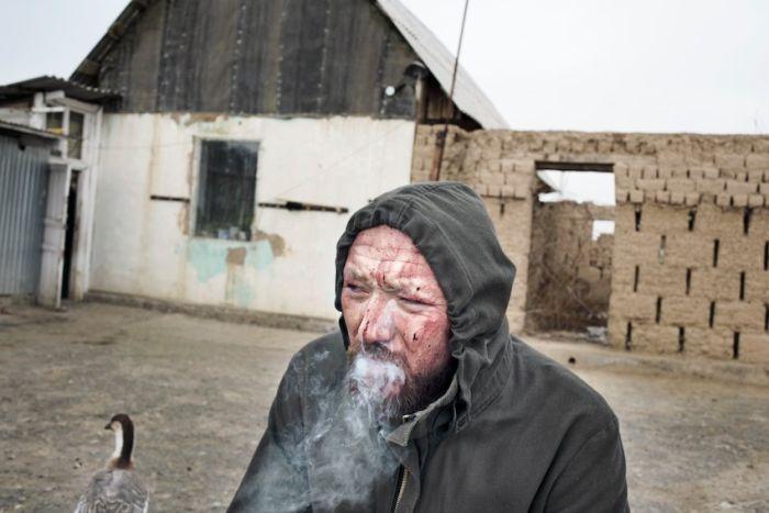 Исцеление кровью в Казахстане (18 фото)