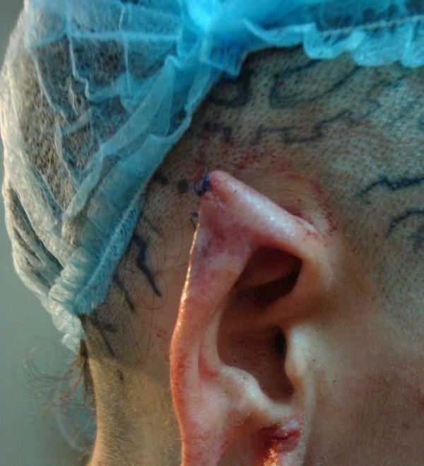 Новые уши Кристины Рэй (13 фото)