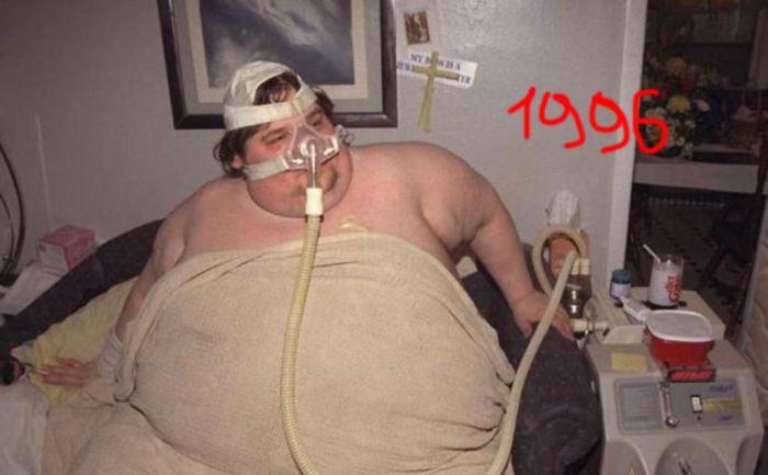 История одного из самых тяжелых людей в мире (15 фото)