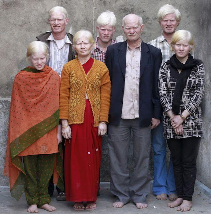 Самая большая семья альбиносов (17 фото)