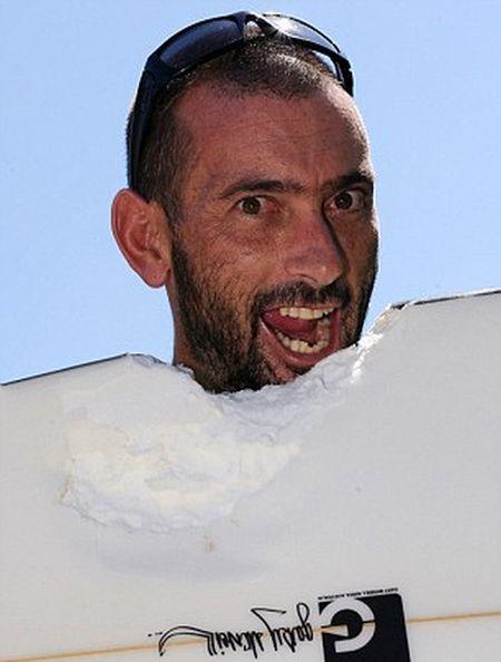 Австралийский серфер выжил после нападения акулы (3 фото)