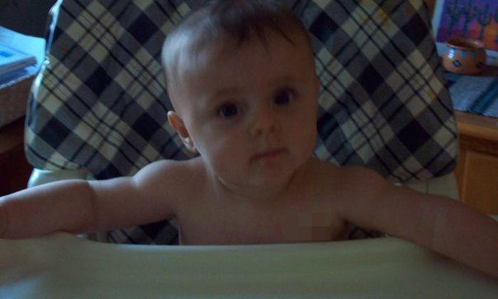Ребенок с родимым пятном (3 фото)