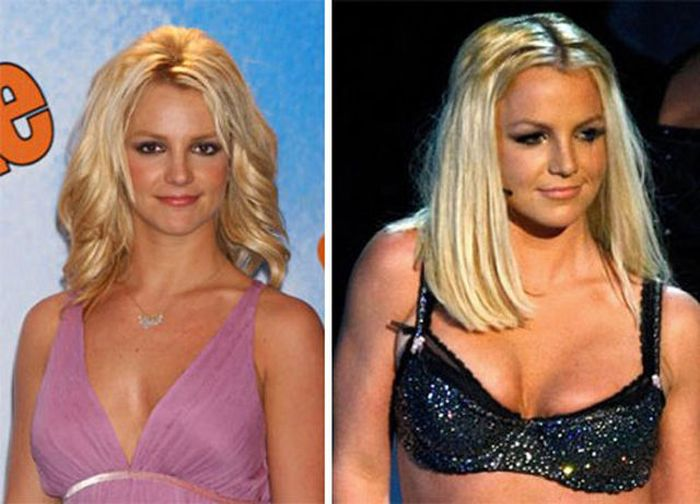 Ненастоящая грудь знаменитостей (14 фото)