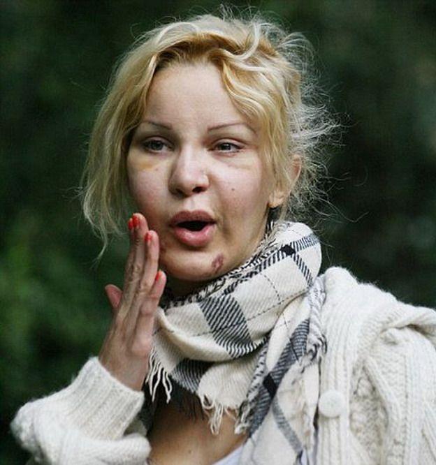 Алисия Дюваль - рабыня пластических операций (18 фото)