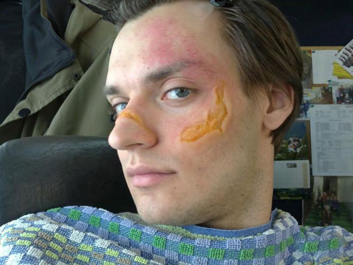 Как делают ранения для кинофильмов (10 фото)