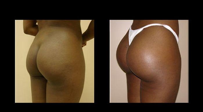 До и после пластических операций по коррекции попы (17 фото)
