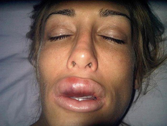 Как изменилась девушка после пластических операций (23 фото)