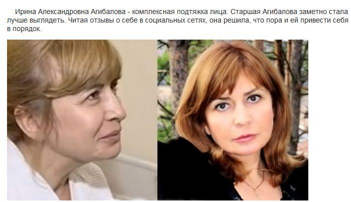 "До и после пластических операций на ""Дом-2"" (14 фото)"