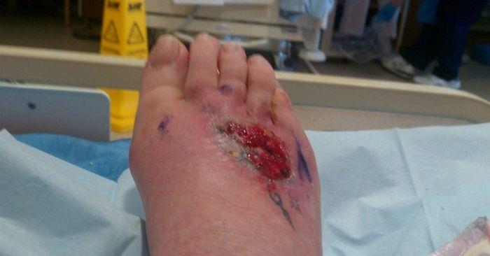 Туристка чуть не лишилась ноги из-за татуировки (7 фото)