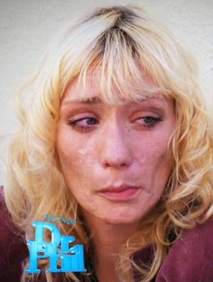Разрушительное действие наркотиков (10 фото)
