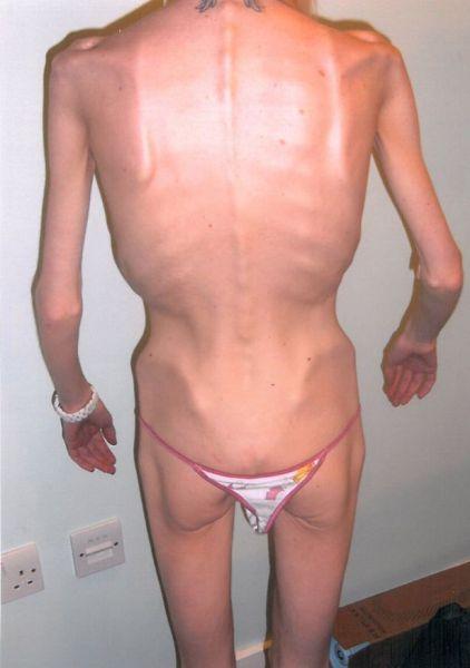 Выздоровление девушки после анорексии (9 фото)