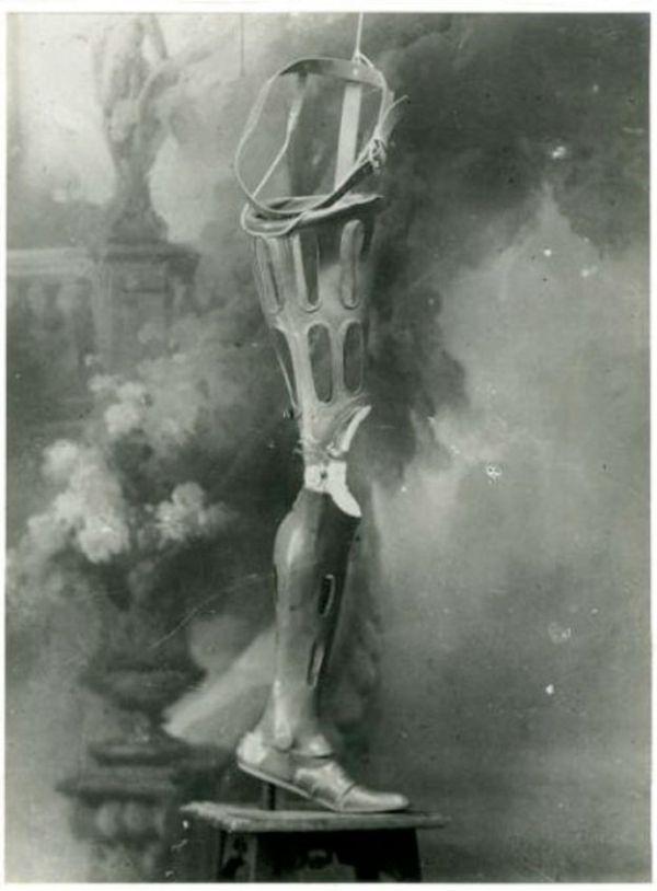 Средневековое протезирование конечностей человека (21 фото)