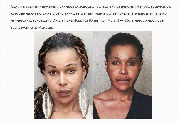Жертвы пластической хирургии (36 фото)
