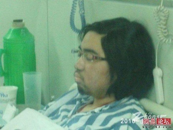 Побочный эффект от лечения апластической анемии (10 фото)