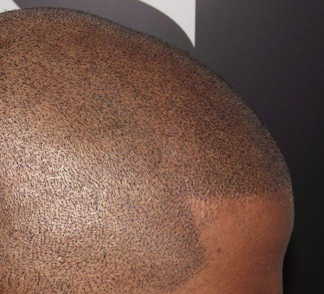 Татуировка, которая скроет мужскую лысину (9 фото)