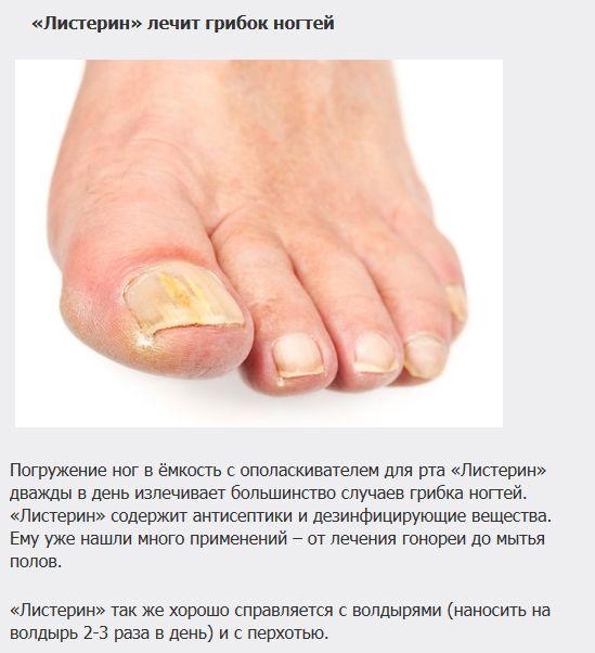 http://de.trinixy.ru/pics5/20121107/lechenie_01.jpg